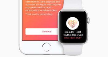 ritmo cardiaco irregular